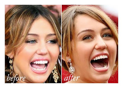And this time, there's no doubt about Miley's tidier lower teeth (image courtesy of beaudents.blogspot.com)