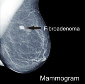 Fibroadenoma Breast Natural Treatment
