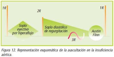 Figura 12. Representación esquemática de la auscultación en la insuficiencia aórtica.