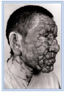 Les lotions pour la personne pour la peau problématique