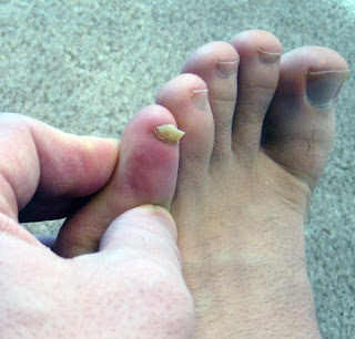 My Personal Battle With Toenail Fungus