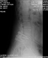 LUMBAR SPINE X-RAY