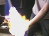 Teen burned in popular body spray stunt