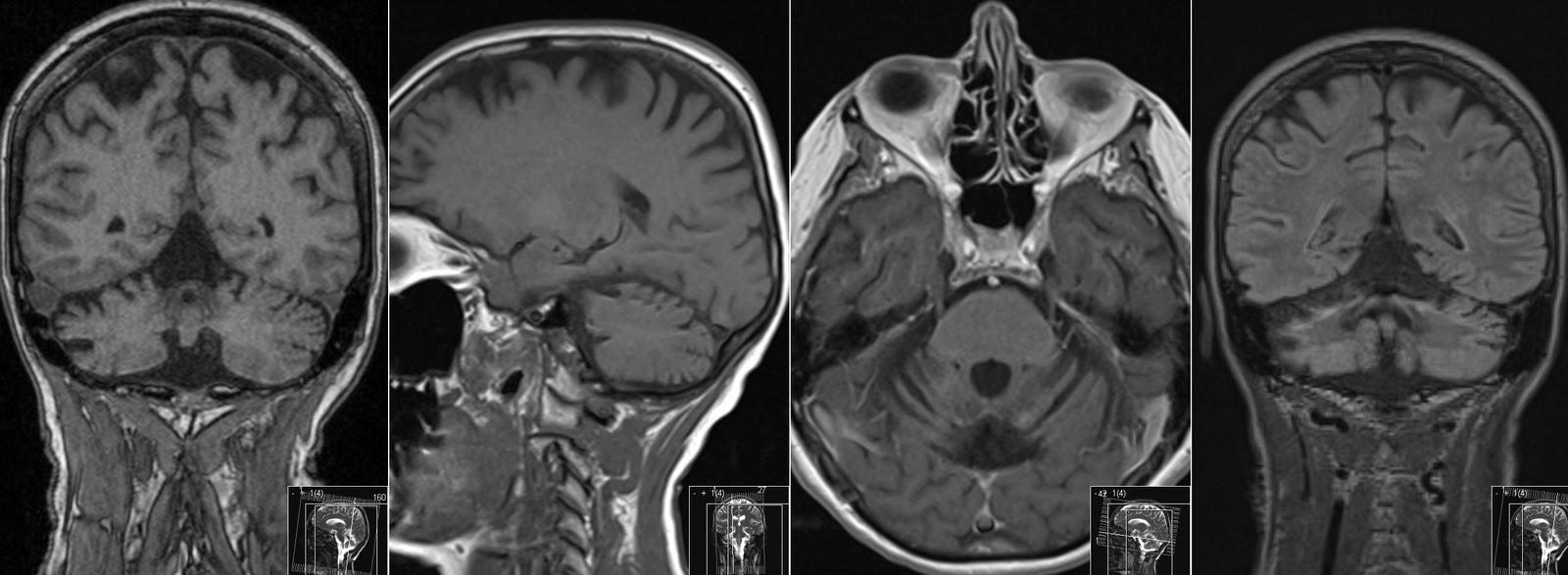 Radiology MRI: Superficial Siderosis