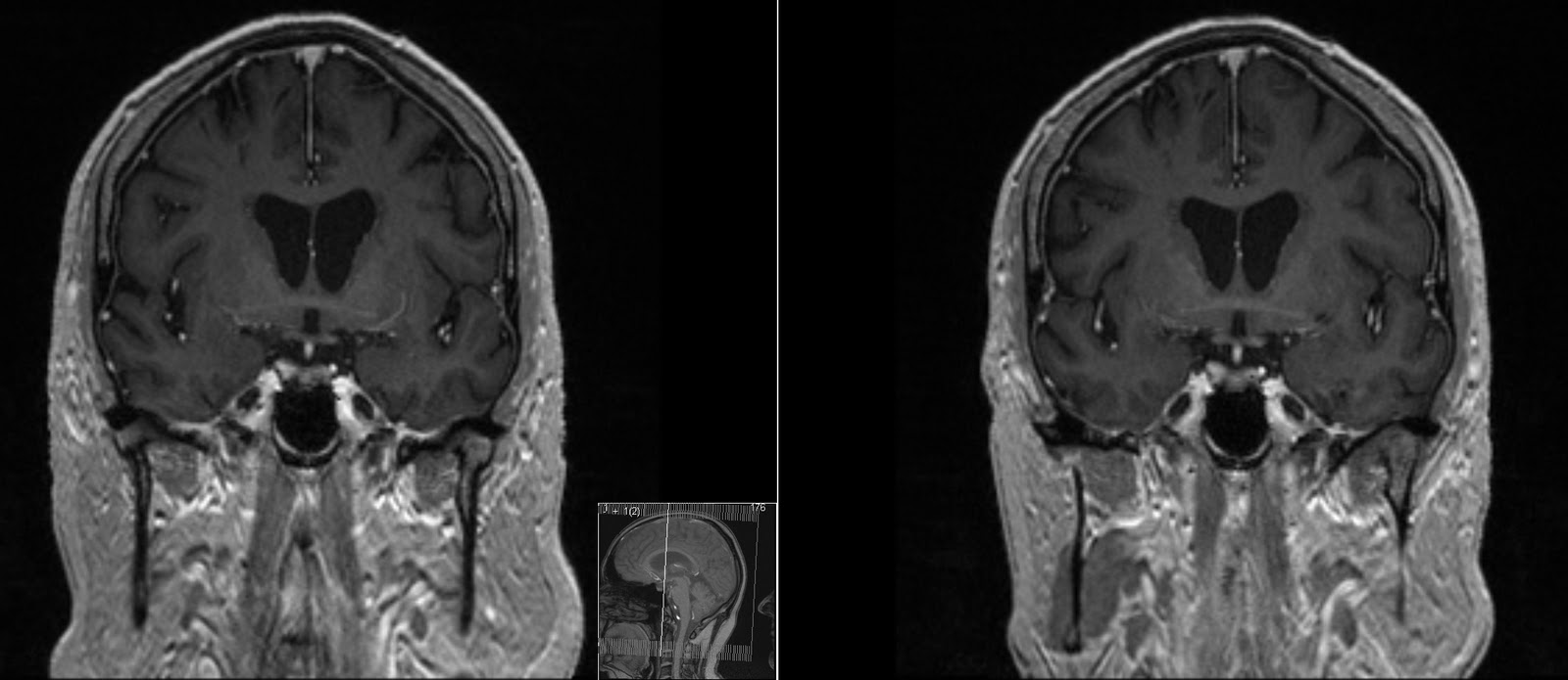 Radiology Mri Anterior Commissure