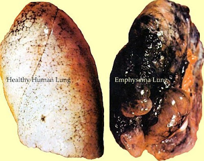 smoking dangerous caused emphysema lung disease