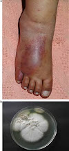 Soft Tissue Infection