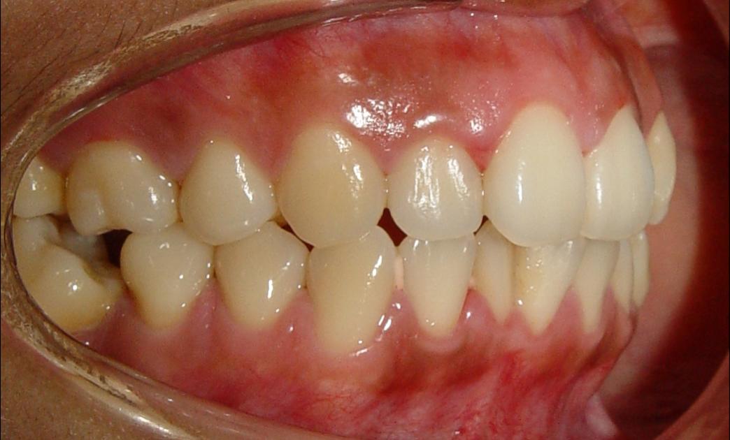 Aula virtual ortodoncia 3 verticalizacion de molares for W de porter ortodoncia