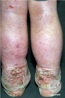 Edema linfático por erisipela