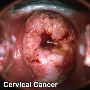 Cervical Cancer-Cancer