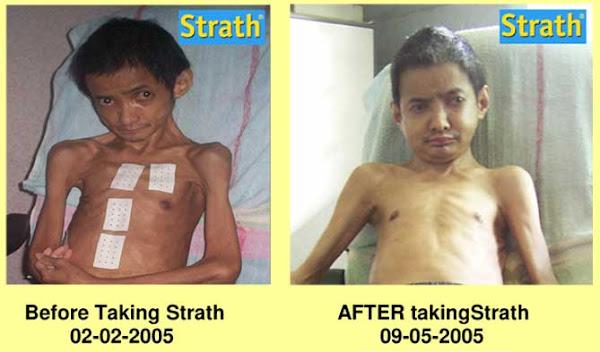 Goh Pey Thong, Severe Rheumatoid Arthritis.