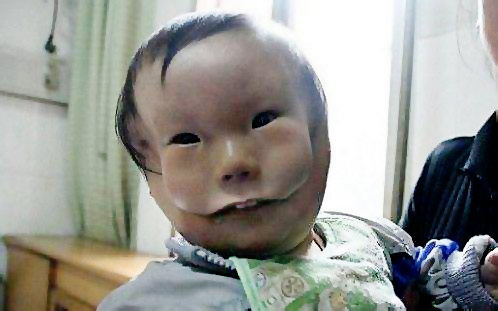 Cleft Cheek 'Mask face' boy from C...