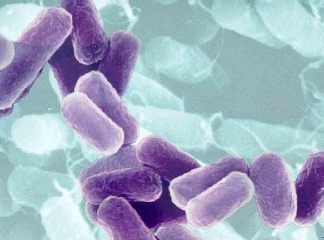 [imagetag] http://3.bp.blogspot.com/_3pKiRJjc6sw/S82IudM6tfI/AAAAAAAAAE4/mOm9UeqZFEg/s1600/bacteria.jpg