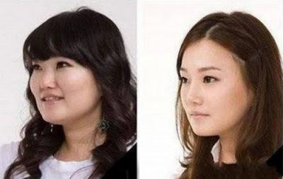 Antes y después de una cirugia estética