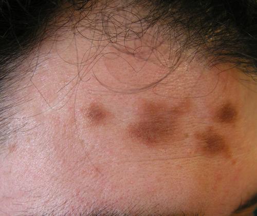 Crema para desmanchar elimina las manchas de tu piel - Como quitar manchas de limon en el piso ...