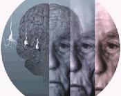 Aportes de la Psicosomatica Psicoanalitica a la comprension de la conducta corporal del demente