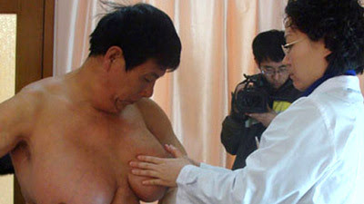 Chinese Man With World's Biggest Breast