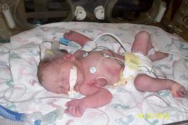 Adam shortly after birth