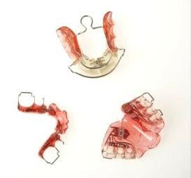 2b9c4be17 Ortodontia ao alcance de todos  Aparelhos Móveis