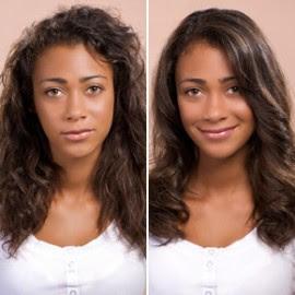 cauterização cabelo