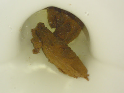 Poop Whats Normal Whats Not  7 Steps to Healthy Poop