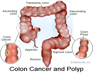 Stool Dna Testing Could Play Expanded Role In Colon Cancer