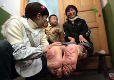 Woman with Feet Facing Backward in China