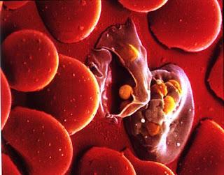 gaixotasuna anemia: