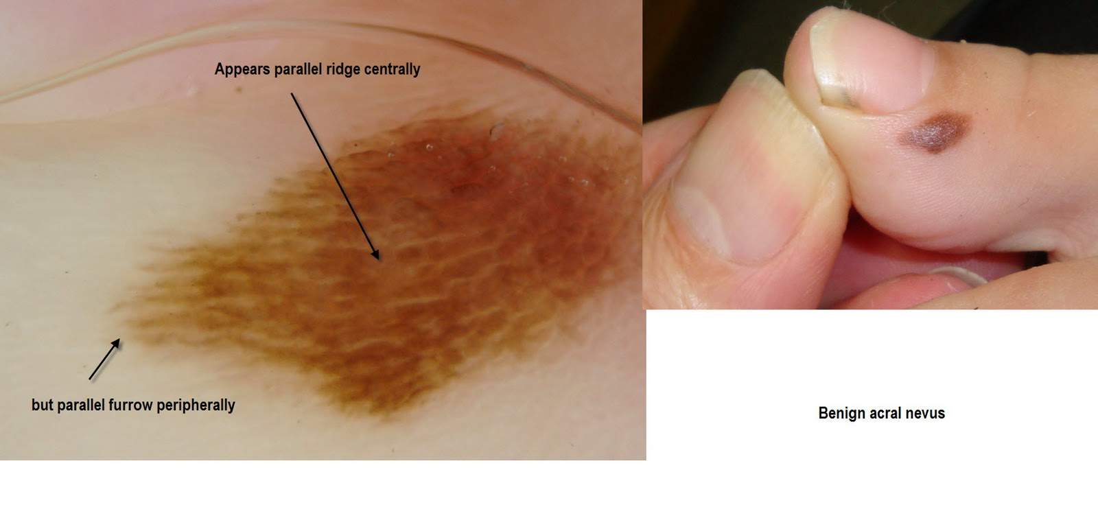 Suspected Toenail Melanoma | Melanoma Research Foundation