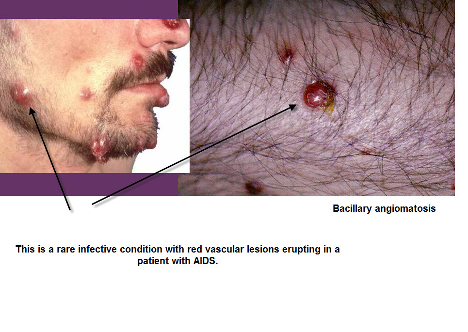 understanding how cat scratch disease originates Our current understanding of cat scratch disease results from experience and investigation in diverse parts of the world similarly, the problem of cat scratch disease and the reservoirs of its etiologic agent span the globe.
