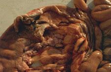 Pancreatite Crónica com atrofia