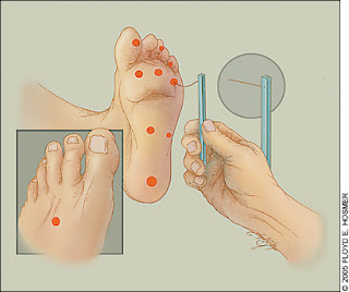 soy diabetica no tengo sensibilidad en los pies, quisiera