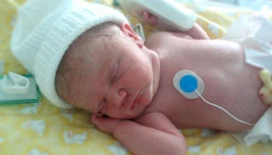 fotos de bebes. Enfermedades de bebés
