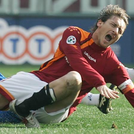 Foto-Foto Kecelakaan Terparah Pemain Bola