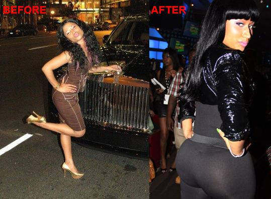 Nicki Minaj Booty Before and After butt implant. Plastic Surgery - Plastic