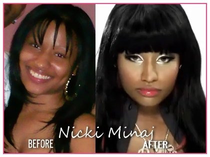 nicki minaj before surgery and after photos. Nicki Minaj Before And After
