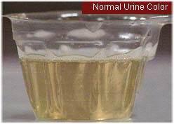 Urine color