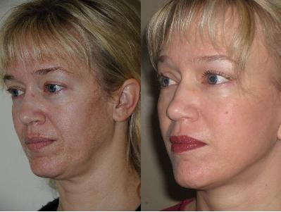 Avril O Connor S Anti Aging Diary Italian Cosmetic Surgeon