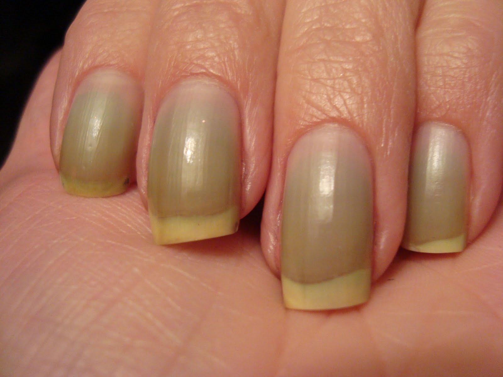 få bort gula naglar
