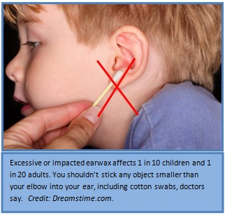 remove earwax with candles