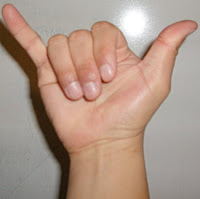 Palm facing hand with the three middle fingers touching the palm. Thumb and pinkie fingers point in opposite directions away from the hand.