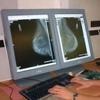 Mamografías y cáncer de mama
