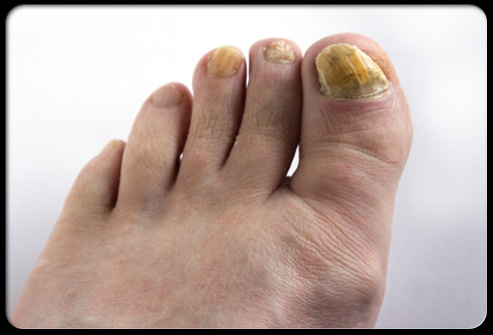 Foot problems for diabetes