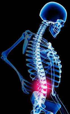 prevent back pain by personal trainer toronto