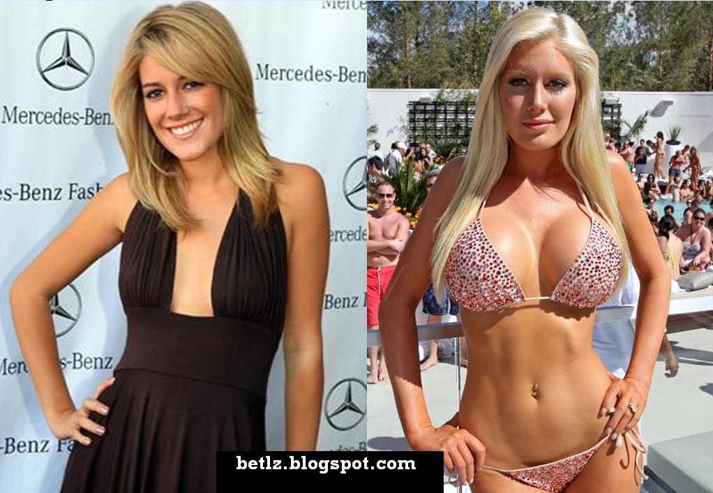 heidi montag before and after 10 surgeries. Heidi Montag Before  (L) and