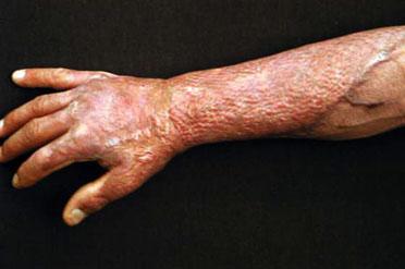 how to stop salicylic acid burn
