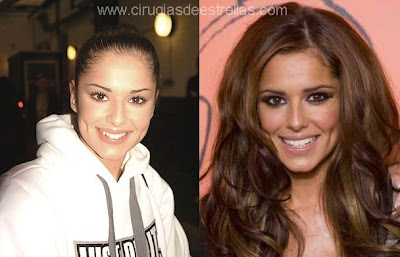 Cheryl Cole operada
