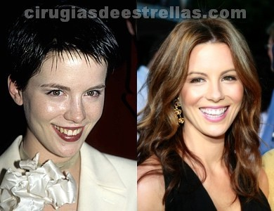 kate beckinsale operada