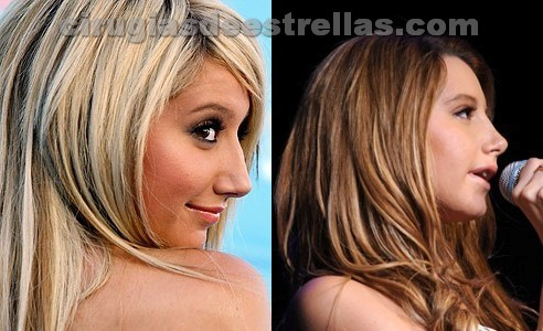 Rinoplastia de Ashley Tisdale