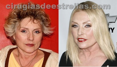 Debbie Harry antes y despues